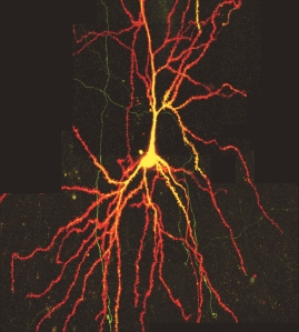 Two-photon-microscopy of neuron. Source: FMI